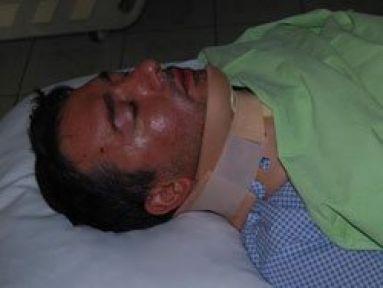 AK Partili İlçe Başkanı kaza yaptı